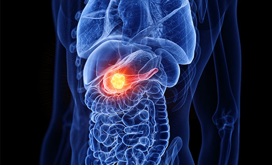 Understanding Pancreatic Cancer