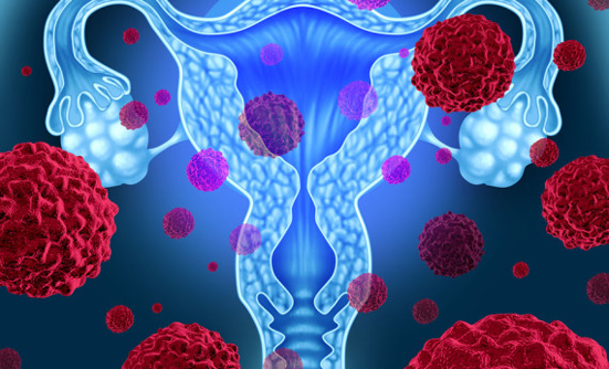 New Biomarker May Predict Risk for Uterine Cancer Recurrence
