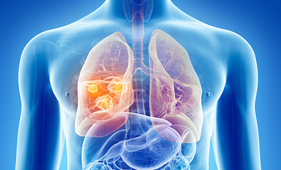 Where to Turn After You've Been Diagnosed with Lung Cancer