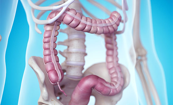 What You Need to Know About Colorectal Cancer