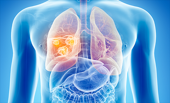 5 Things You Need to Know About Low-Dose CT Screening for Lung Cancer