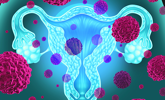 Advances in the Treatment of Cervical Cancer