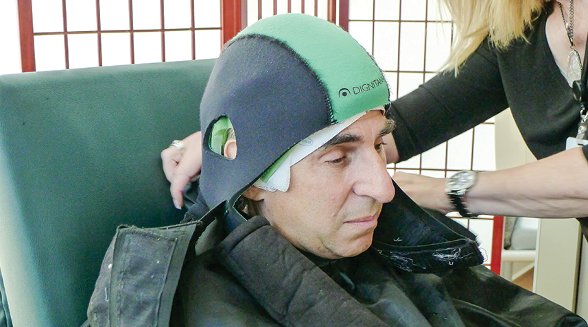 Chemo-Induced Hair Loss Still a Major Concern for Patients