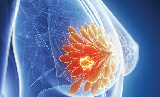 Piqray New Treatment Approved for Metastatic Breast Cancer and PI3KCA Mutation