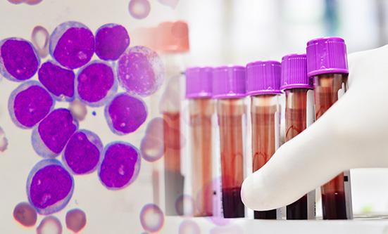 Cytogenetic Testing in Chronic Lymphocytic Leukemia