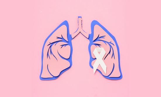 COVID-19 FAQs for People with Lung Cancer